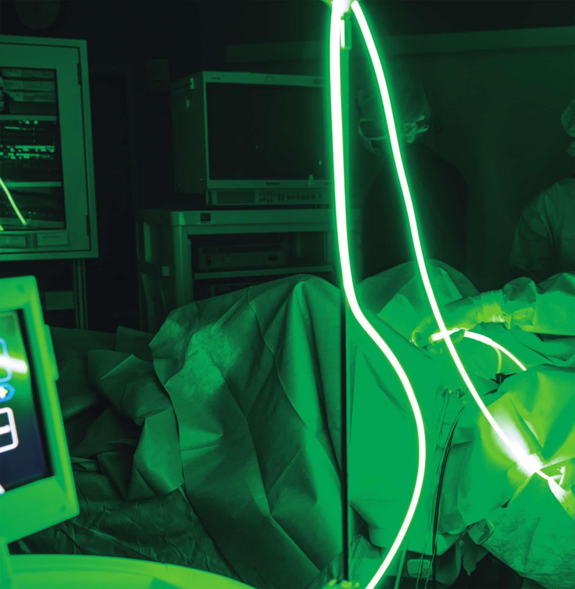 Operazione effettuata con Laser Green light