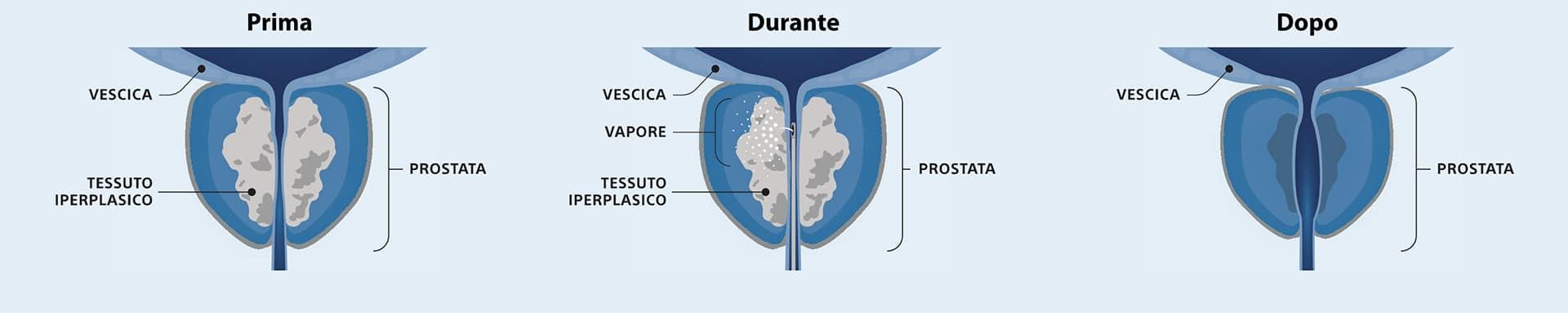 Trattamento dell'ipertrofia prostatica benigna prima, durante e dopo il Rezum