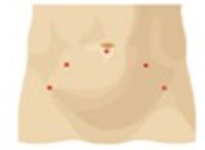 Disegno del taglio effettuato con chirurgia mininvasiva