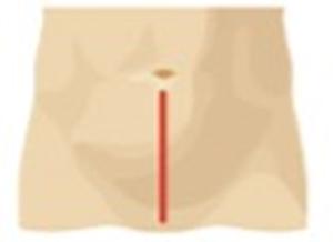 Disegno del taglio effettuato con chirurgia open