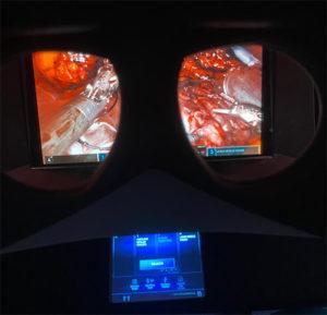Visione del monitor durante un'operazione in chirurgia robotica